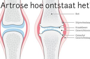 specifieke artrose behandeling in enschede en alphen a/d rijn