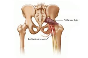 De bron voor onze chronische rugpijn ( of Ischias ) behandeling