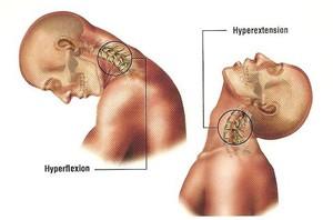 laat uw whiplash behandelen bij onze chiropractor!